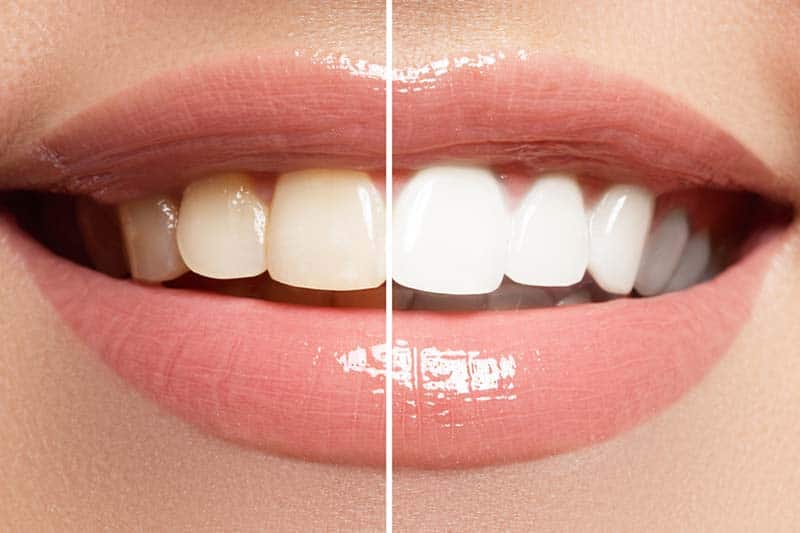 Teeth Whitening Murwillumbah